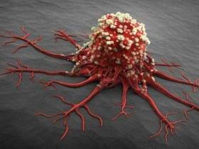 癌从口入! 养癌五大食物, 每吃一口癌细胞就长一寸
