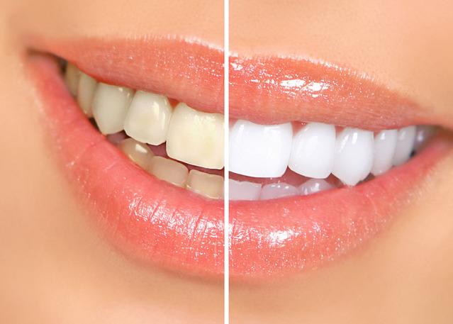 无需洗牙,教你5分钟消除牙垢!!太棒了!