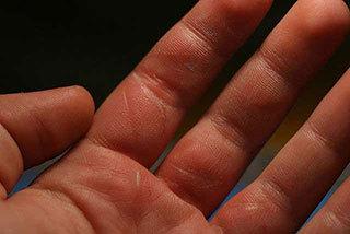 普通人应该知道的烧伤急救方法